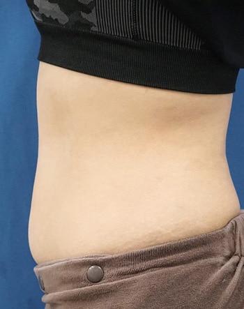 MITI(脂肪溶解注射) 1か月後のAfterの写真