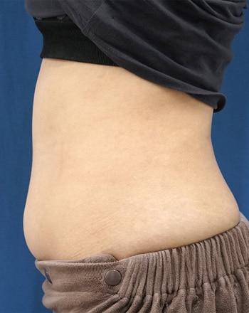 MITI(脂肪溶解注射) 1か月後のBefore写真