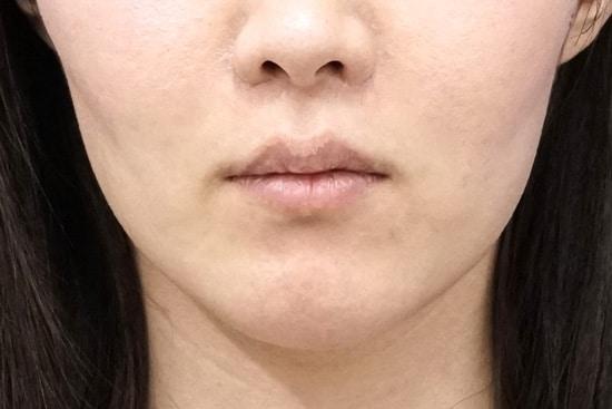 口角を上げるセット1週間後のBefore写真