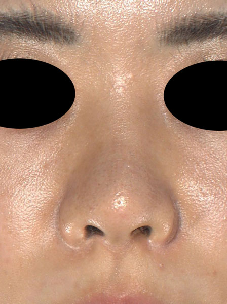 鼻尖縮小(3D法)、ストラット、軟骨移植 半年後 正面のAfterの写真