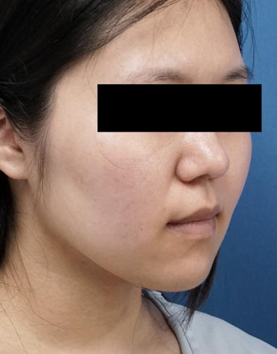 脂肪吸引(ホホ・アゴ下・ほうれい線上) 半年後 右斜めのBefore写真
