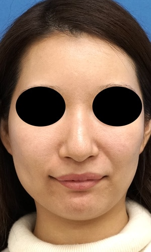 クレヴィエルコントア(鼻、アゴ)1週間後のBefore写真