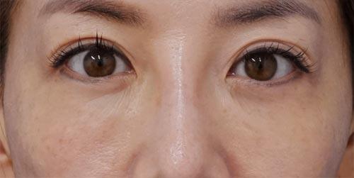 目の下脂肪取り+コンデンス脂肪注入 手術直後~1ヶ月後のAfterの写真