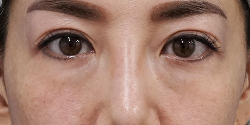 目の下脂肪取り+コンデンス脂肪注入 手術直後~1ヶ月後のBefore写真