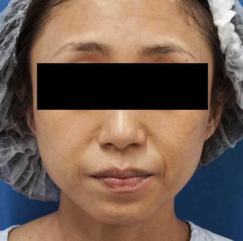 法令線ヒアルロン酸(ボリューマ) 1ヶ月後のBefore写真