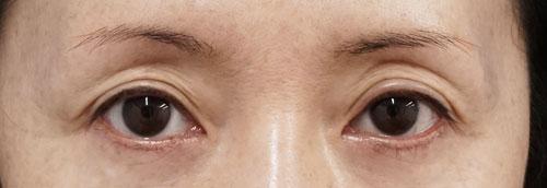 目の上ヒアルロン酸(くぼみ目改善) 1週間後のBefore写真