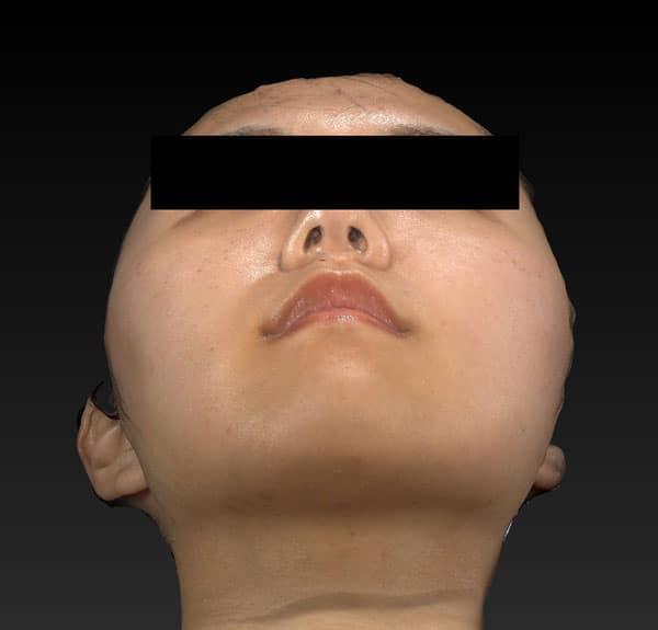 小顔脂肪吸引(ほうれい線上・ホホ・アゴ下) 半年後 下からのAfterの写真