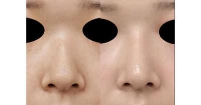 鼻尖縮小、I型プロテーゼ 3ヶ月後