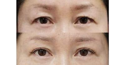 眉下切開 1ヶ月後、6ヶ月後