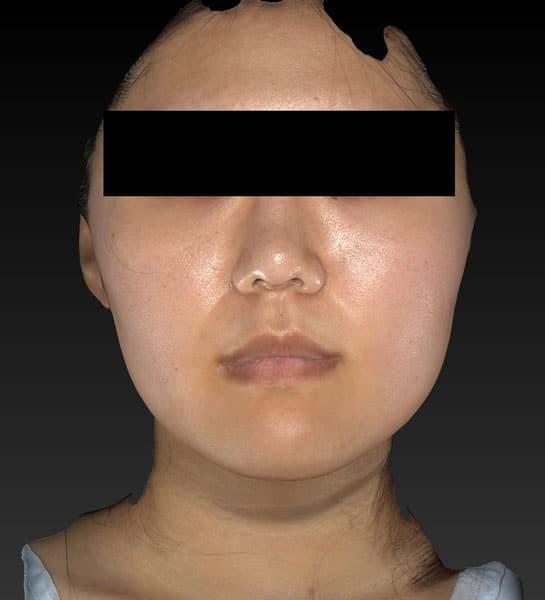 小顔脂肪吸引(ほうれい線上・ホホ・アゴ下) 半年後 正面のBefore写真