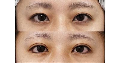 目尻切開、下眼瞼下制(切るタレ目)、二重埋没法(スマートバランス) 1週間後~半年後の経過