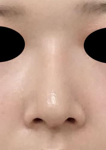 鼻尖縮小、I型プロテーゼ 3ヶ月後 正面のAfterの写真