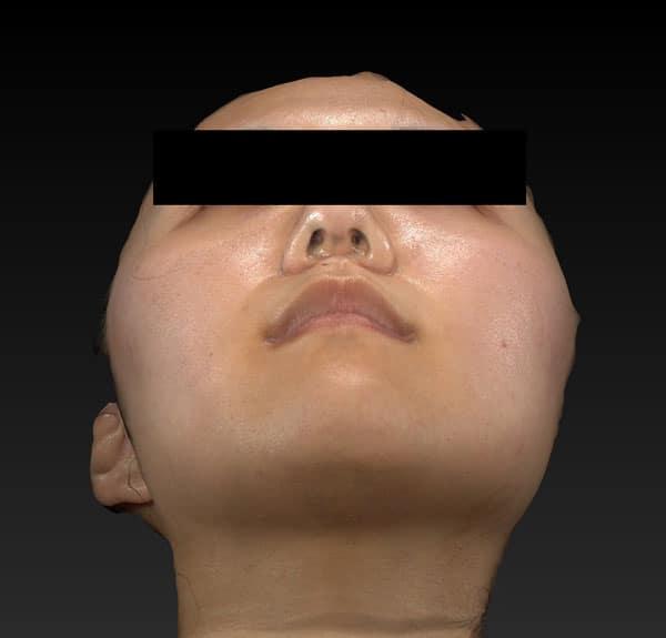 小顔脂肪吸引(ほうれい線上・ホホ・アゴ下) 半年後 下からのBefore写真