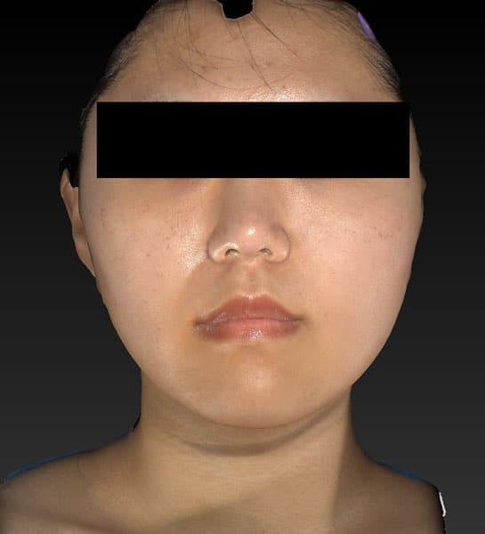 小顔脂肪吸引(ほうれい線上・ホホ・アゴ下) 半年後 正面のAfterの写真