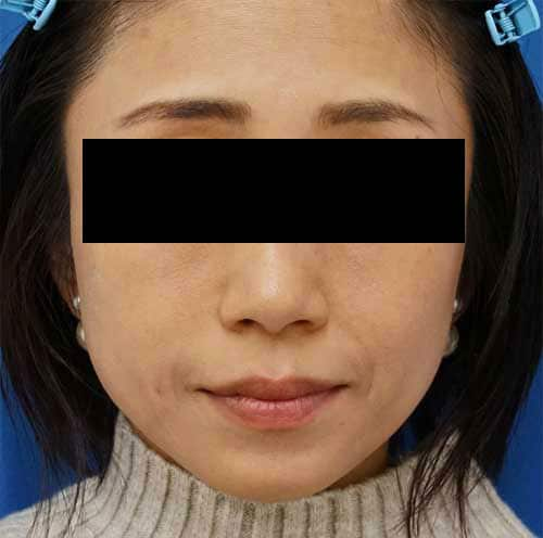 法令線ヒアルロン酸(ボリューマ) 1ヶ月後のAfterの写真