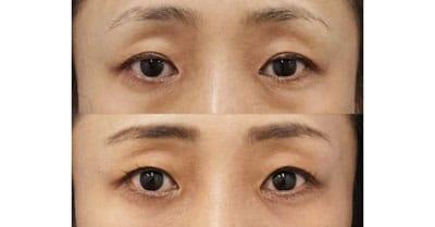 切らない眼瞼下垂 1ヶ月後