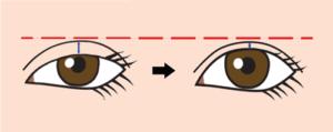 目の開きが良くなると二重が狭くなる図
