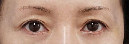 目の上ヒアルロン酸(くぼみ目改善) 1週間後のAfterの写真