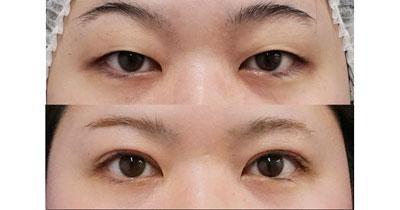 二重全切開、眼瞼下垂(挙筋前転術) 1ヶ月後、4か月後