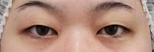 二重全切開、眼瞼下垂(挙筋前転術) 4か月後のBefore写真