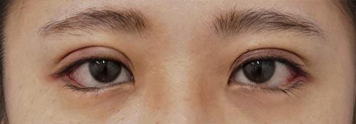 目尻切開、下眼瞼下制(切るタレ目)、二重埋没法(スマートバランス) 1週間後のAfterの写真
