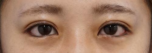 目尻切開、下眼瞼下制(切るタレ目)、二重埋没法(スマートバランス) 1ヶ月後