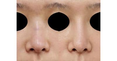 鼻プロテーゼ 半年後