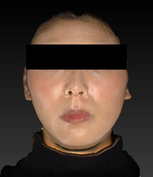 アラガン強力小顔ボトックス 1ヶ月後のAfterの写真