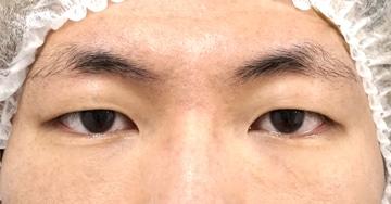 切らない眼瞼下垂プレミアム3か月後のBefore写真