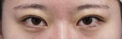 二重埋没法(スマートバランス) 手術直後のAfterの写真