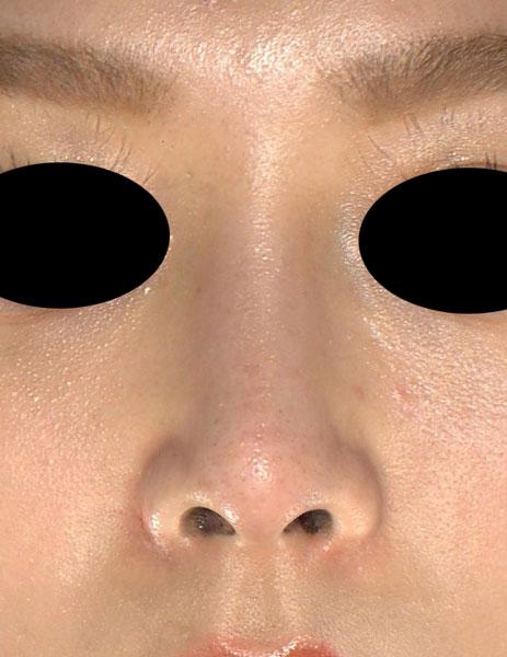 I型プロテーゼ(鼻) 3ヶ月後 正面のAfterの写真