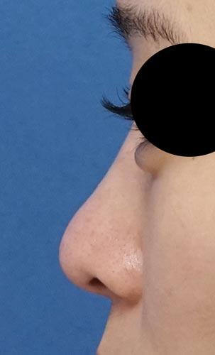 鼻プロテーゼ 半年後 左側面のBefore写真