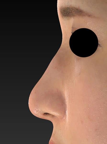 鼻尖縮小、軟骨移植 3ヶ月後 左側面のAfterの写真