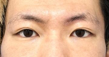 切らない眼瞼下垂プレミアム3か月後のAfterの写真