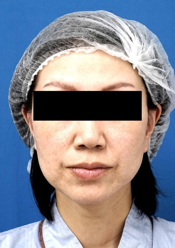 バッカルファット除去術1か月後のAfterの写真