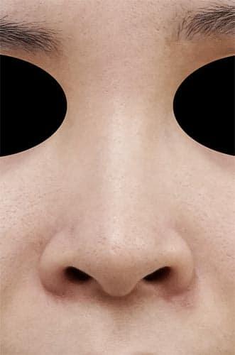 鼻孔縁延長 手術前 正面