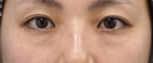 目の下脂肪取り、コンデンス脂肪注入 2ヶ月後のBefore写真