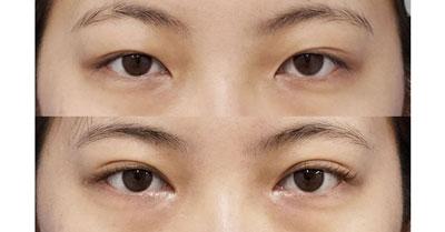 目頭切開(Z形成)、二重埋没法(腫れにくい3点止め) 1ヶ月後、半年後