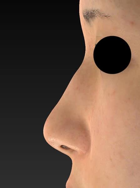 鼻尖縮小、軟骨移植 3ヶ月後 左側面のBefore写真