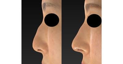 鼻尖縮小(3D法)、ストラット、軟骨移植 1ヶ月後