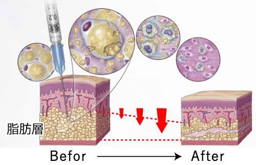 デオキシコール酸 脂肪溶解画像