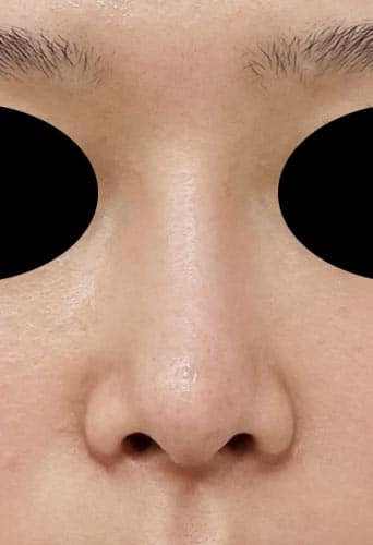 鼻プロテーゼ 半年後 正面のAfterの写真