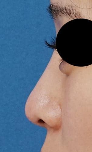 鼻プロテーゼ 半年後 左側面のAfterの写真