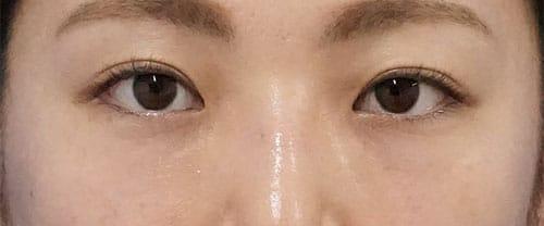 目の下脂肪取り、コンデンス脂肪注入 2ヶ月後のAfterの写真