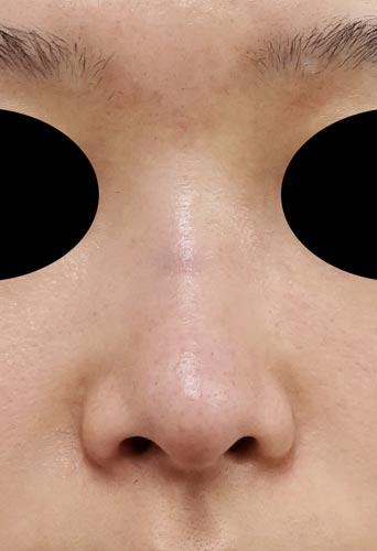 鼻プロテーゼ 半年後 正面のBefore写真