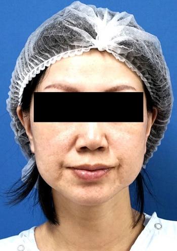 バッカルファット除去術1か月後のBefore写真