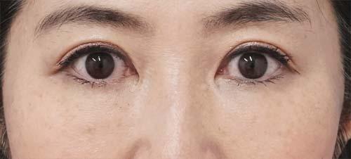 ベビーコラーゲン(目の下) 1週間後のAfterの写真