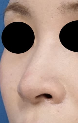 鼻孔縁延長 3ヶ月後 左斜め