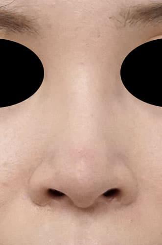鼻孔縁延長 3ヶ月後 正面