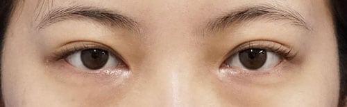 目頭切開(Z形成)、二重埋没法(腫れにくい3点止め) 半年後のAfterの写真